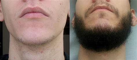 Minoxidil beard forum - BeardStylesHQ
