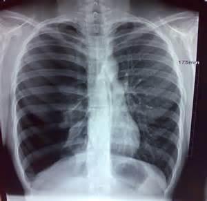 Trauma.org - Image - Tension Pneumothorax Pneumothorax