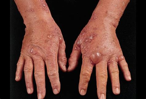 Phytophotodermatitis With Blisters Picture Image on