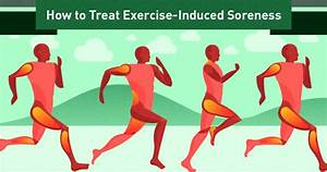 How To Treat Exercise Induced Muscle Soreness