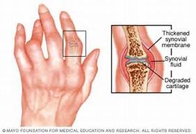Image result for rheumatoid arthritis