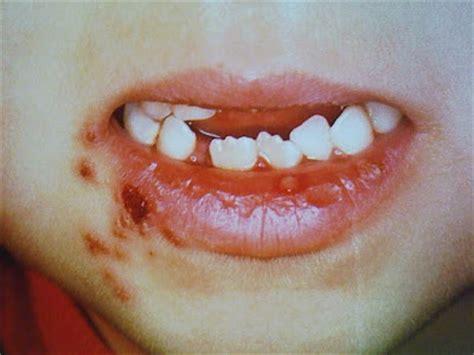 ube pediatric clinic cold sores herpes simplex