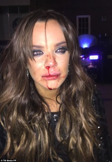 maria fowler puts on a brave face for modelling shoot after being attacked during night out in