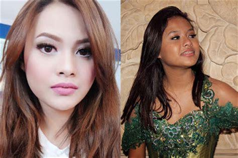 artis indonesia  diduga operasi pelastik  tetap