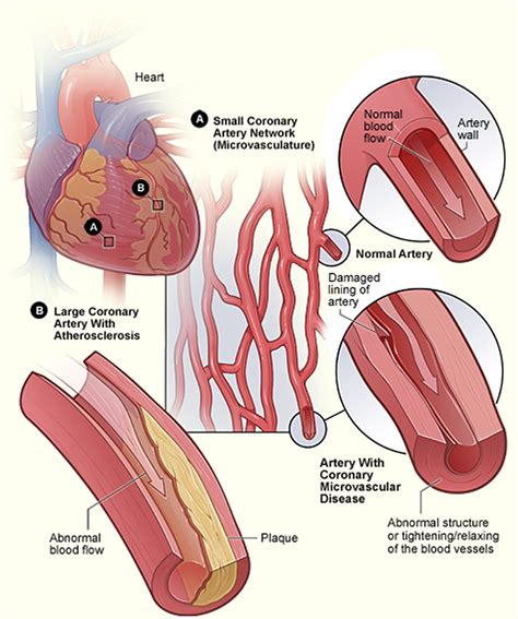 Signs & Symptoms Of A Heart Attack What You Should Do To. Kesihatan Signs Of Stroke. Manic Signs. Premenstrual Dysphoric Signs. Genetic Algorithm Signs. Attack On Titan Character Signs Of Stroke. Road Bulgaria Signs. Ovarian Signs. Navajo Signs