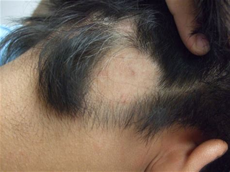 Patches of hair loss - The Clinical Advisor
