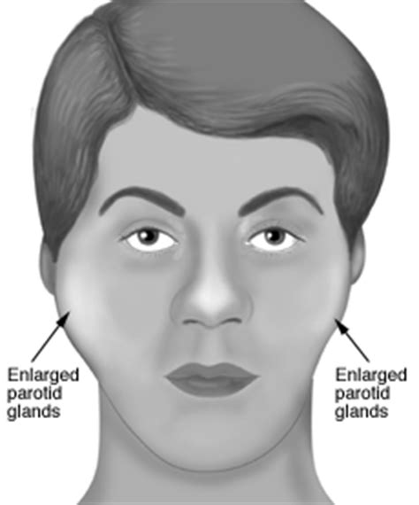 Causes of Swollen Salivary Gland in Neck