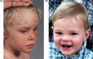 Xeroderma Pigmentosum Patients With And Without