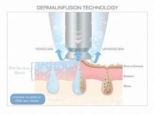Dermalinfusion Facial In Scottdale  U0026 Phoenix  Az