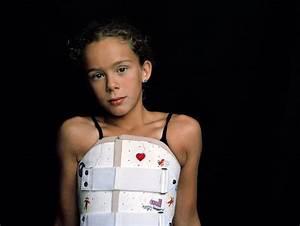 Powerful Photos Show Teen Girl Overcoming Idiopathic ...