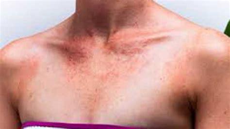 allergic reaction  sunscreen    symptoms