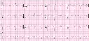 Dr. Smith's ECG Blog: What is the diagnosis? A nearly ...