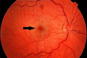 Fundus Photograph Showing A Cherry
