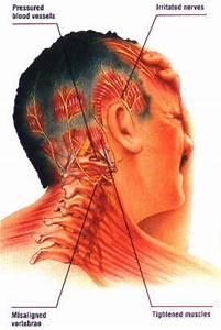Bulging disc in neck headache