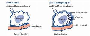 What Is Interstitial Lung Disease  Ild
