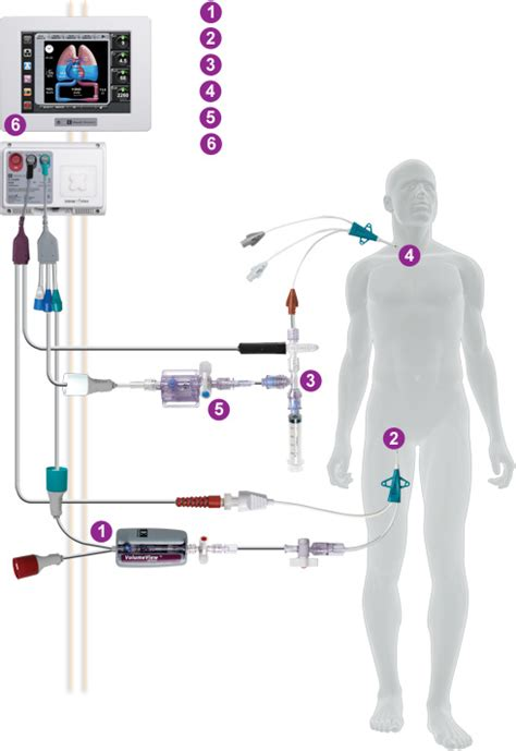 Bio-Implants Market Research Report, Forecast to 2017 ...