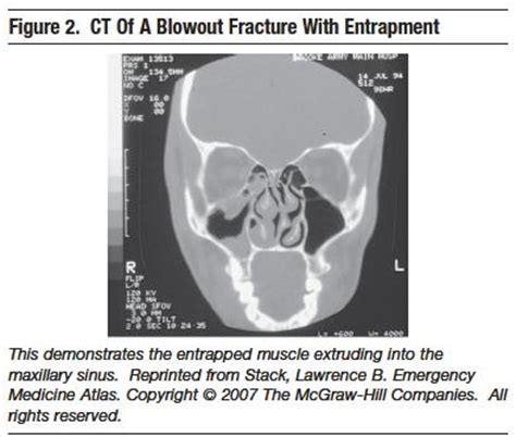 orbital floor fracture with entrapment because the infraorbital nerve passes through the orbital