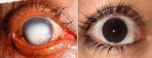 Doctor Eye Institute   Diseases And Disorders Of The Cornea