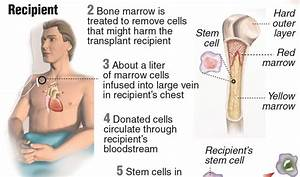 Bone Marrow Transplant Pictures to Pin on Pinterest ...