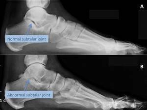 Subtalar Arthritis   Arthritis Of The Subtalar Joint   LFAC