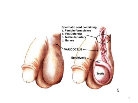 Urology 38 Varicocele