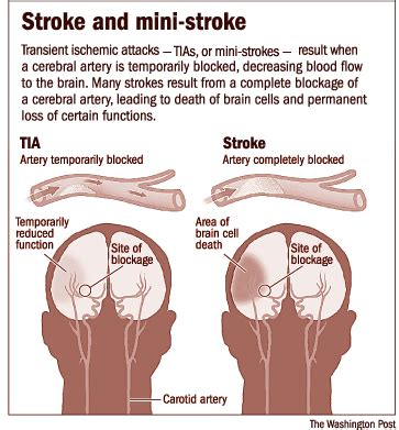If You Feel Symptoms Of Stroke, Our Health, Diabetes Stroke. Middle Lobe Signs. Stage Signs Of Stroke. Two Wheeler Driving Test Signs Of Stroke. Baby 4 Months Old Signs. Youtuber Signs. Man Cave Signs Of Stroke. Positive Affirmations Signs. Peanut Free Signs Of Stroke