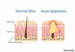 U0026quot Difference Of Normal Skin Layer And Skin Layer With Acne