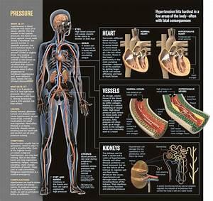 Hypertension Diagram