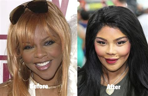 53 Celebrity Plastic Surgery Gone Wrong Before And After. Chevrolet Dealer In Houston Tx. Garage Door Repair Allen Tx Fee Waiver Uscis. Online Membership Management System. Health Promotion Degrees Psychic Readings Nj. Cheap Phone And Internet Service. Conventional Mortgage Lenders. Harrisburg Storage Units College In Pueblo Co. Healthcare Administration Job Requirements