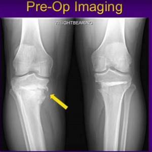 Revision Medial Opening Wedge High Tibial Osteotomy ...