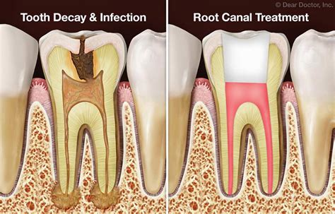 Root Canal Treatment Faqs. Sacramento Injury Lawyer T9 Spinal Cord Injury. Kaplan College Nursing Reviews. Corporate Computer Security Ccnp Exam Cost. Non Vehicle Owner Insurance Direct Car Ins. Emergency Plumber San Diego Winter Park Tech. Small Business Insurance Quotes General Liability. Cheesy Garlic Bread Chips Mcat Exam Schedule. Seattle Immigration Attorney New Body Wash