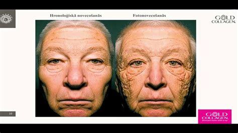 Dzeramais kolagēns ādas skaistumam un jaunībai ...