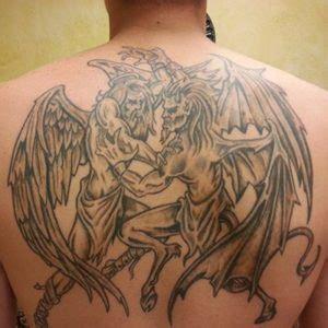 tattoo removal hurt