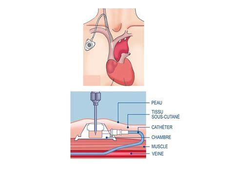 cip chambre implantable chambre implantable cip gallery of feuillet patient la