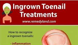 what causes ingrown toenails hrfnd
