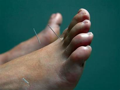 Acupuncture Foot Pain Points Needles Types Medicine