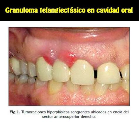 granuloma telangiectasico en cavidad oral reporte de