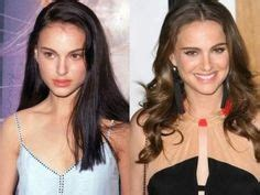 Natalie Portman Smaller Nose Before After