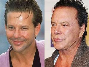 Mickey Rourke's plastic surgery and boxing disaster