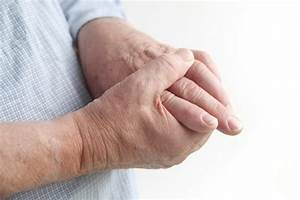 What Is Gouty Arthritis  U2013 Causes  Symptoms And Treatment
