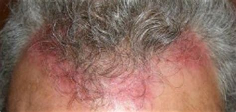 skin remedies  dry scalp