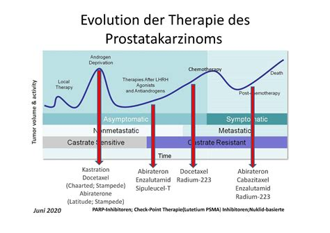 Prostata behandlungsmethoden