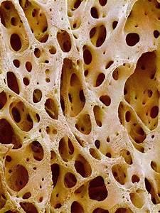Captionbone Tissue  Coloured Scanning Electron Micrograph