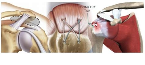 Rotator Cuff Injury Treatment India