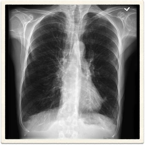 emphysema lungs hyperinflation clinical tunali animation secondary