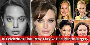 10 Celebrities That Deny They�ve Had Plastic Surgery  Style Hunt World