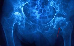 Hip Fractures - Injuries  Poisoning
