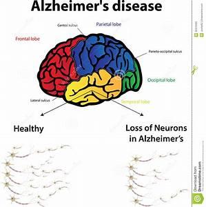 Maladie d'Alzheimer illustration de vecteur. Image du ...