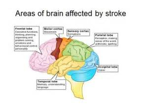 Brain Affected by Stroke