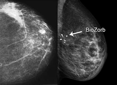 research shows breast cancer surgery marker